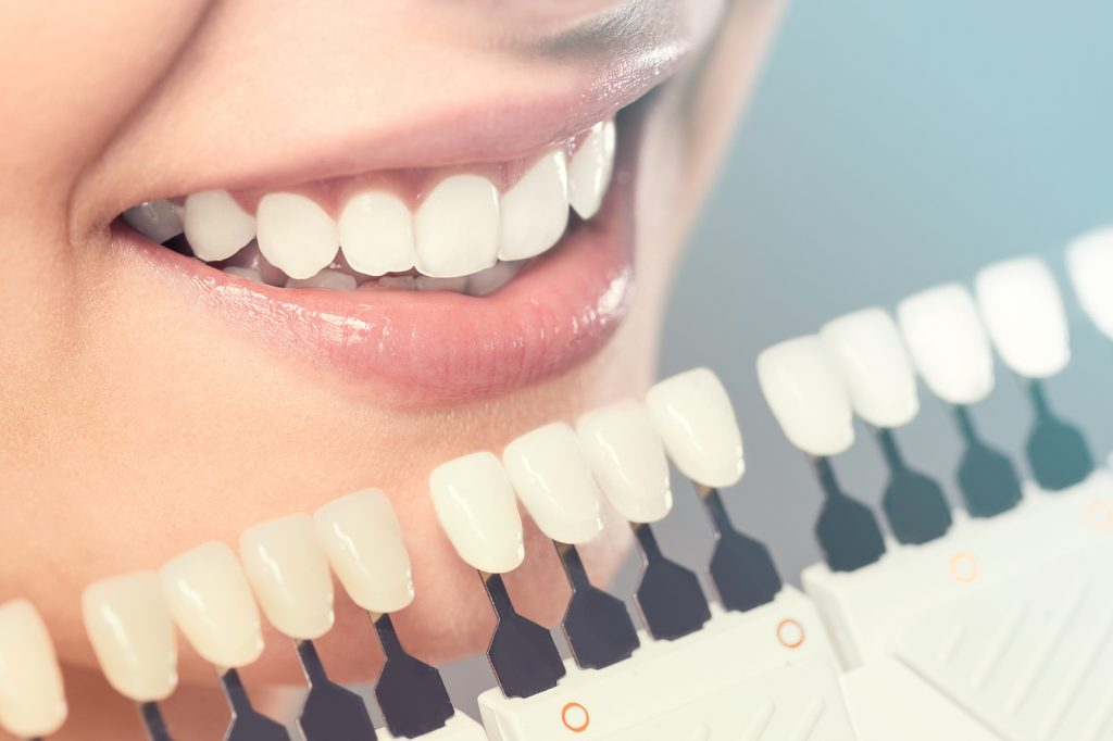 Benefits of using dental veneers