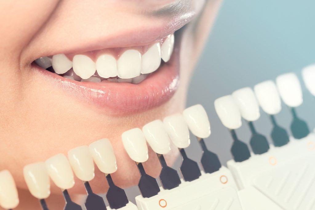 Benefits of using dental veneers